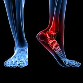 Foot-ankle-pain